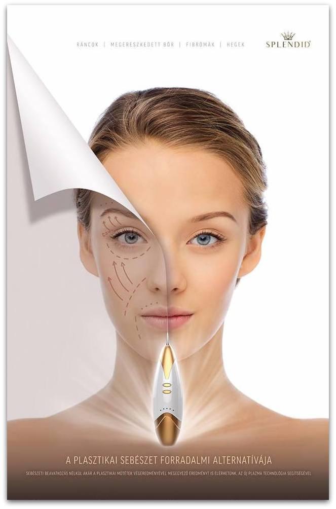 Splendid plazma bőriatalítás